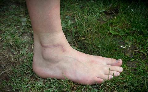 Johannas skadade fot