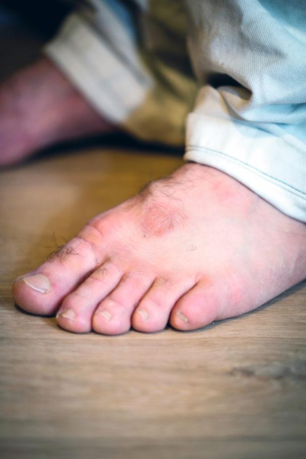 Mohamad Hamids skadade fötter